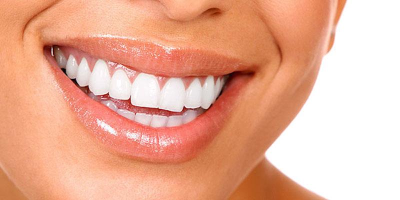 răng miệng thơm tho sạch sẽ nhờ dầu dừa