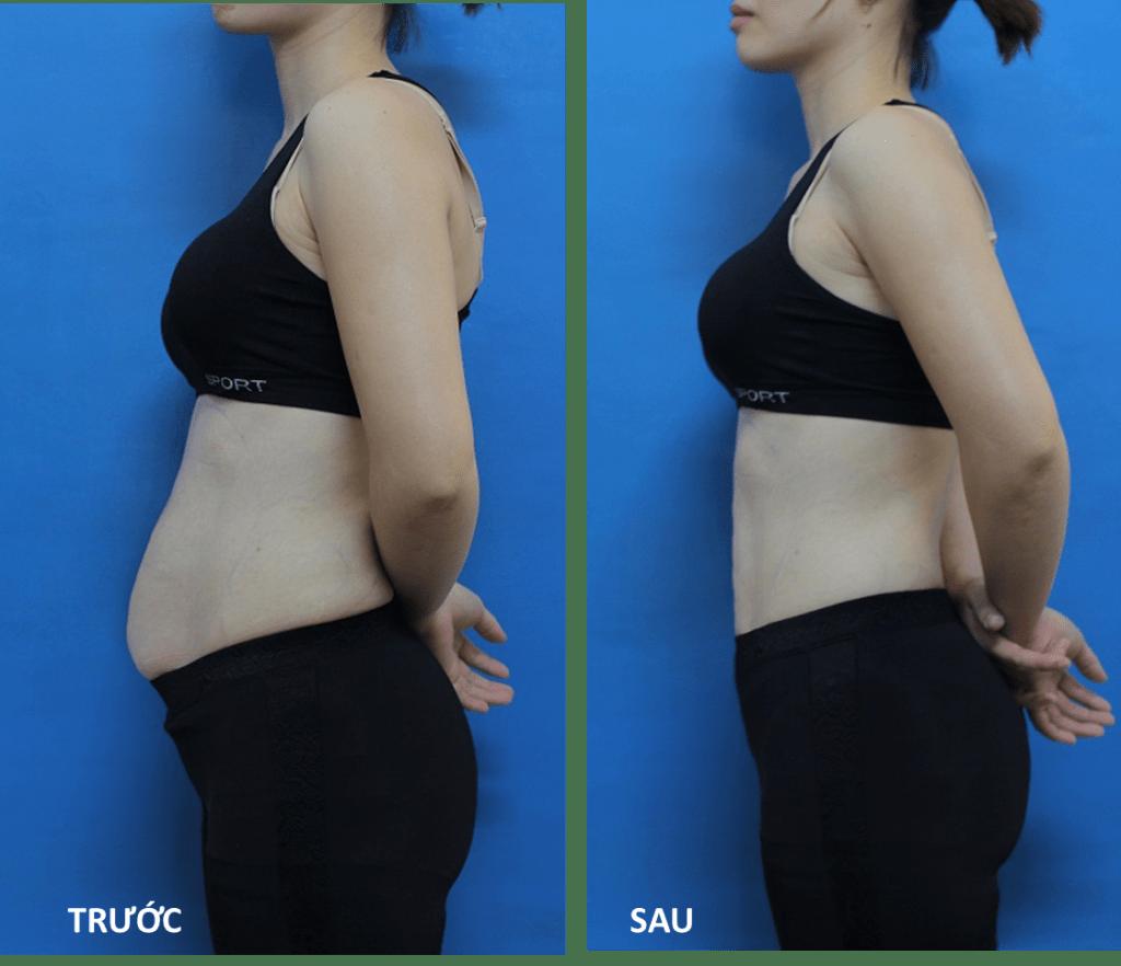 trước và sau khi giảm cân với dầu dừa