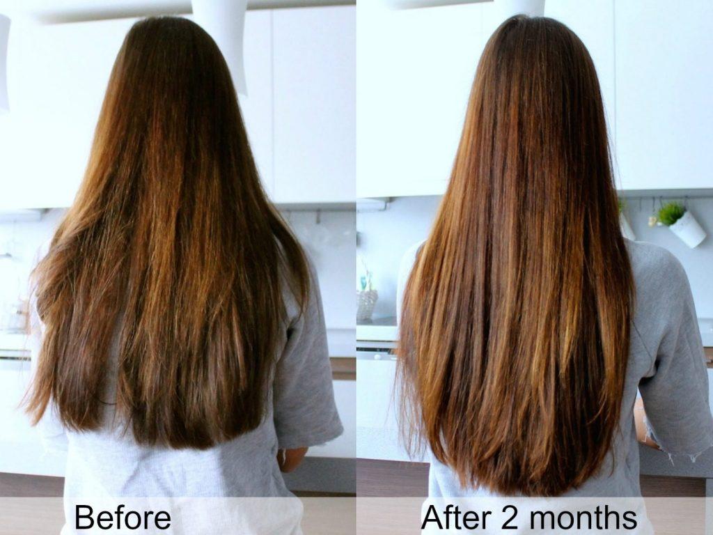 tóc mọc nhanh sau 2 tháng dùng dầu dừa