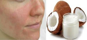 Chữa bệnh chàm (Eczema) bằng dầu dừa