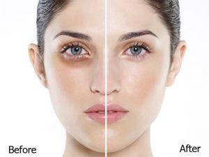Dầu dừa trị thâm mắt đơn giản và hiệu quả