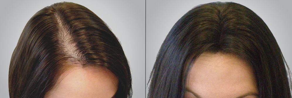 trước và sau khi trị rụng tóc bằng dầu dừa