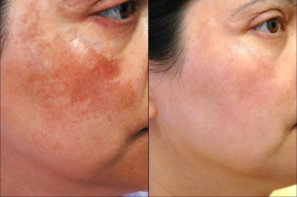 trước và sau khi dùng dầu dừa trị nám da mặt